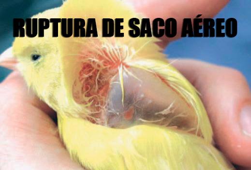 ROTURA DEL SACO AÉREO